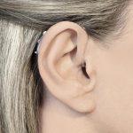 Alberta Hearing Center